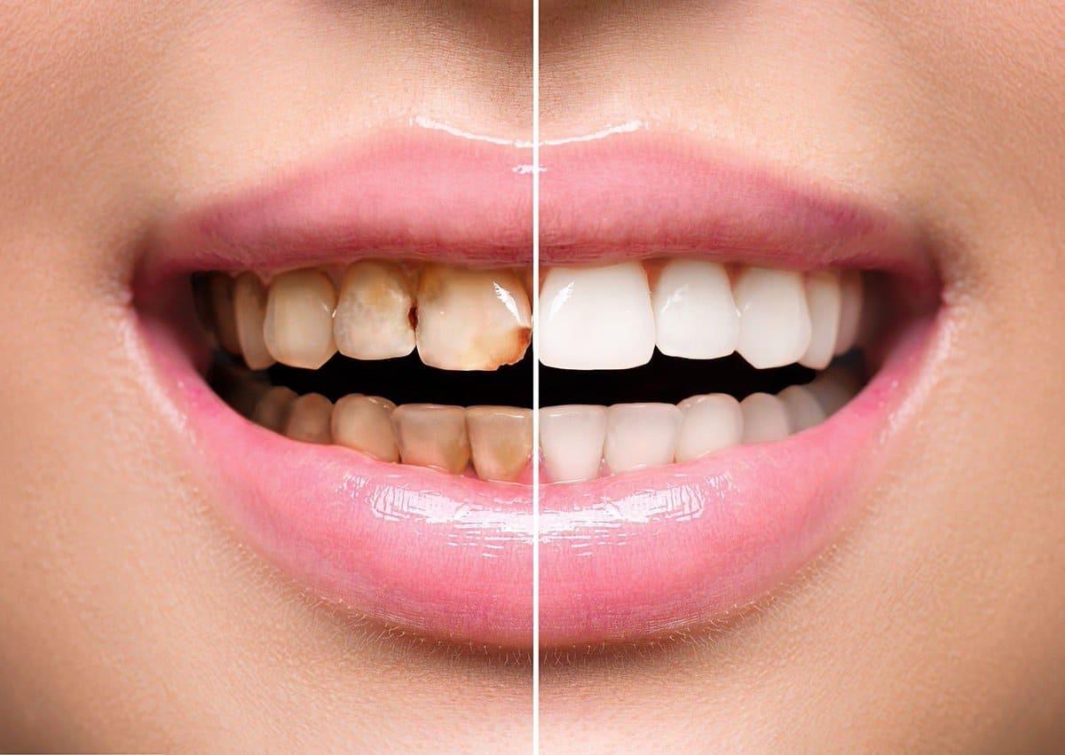 Эстетическая реставрация зубов Одинцово «Меди-Профи»